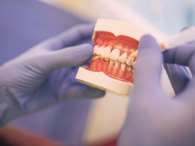 Zahnärztin erklärt Zahnpflege mit Interdentalbürsten anhand eines Modells.
