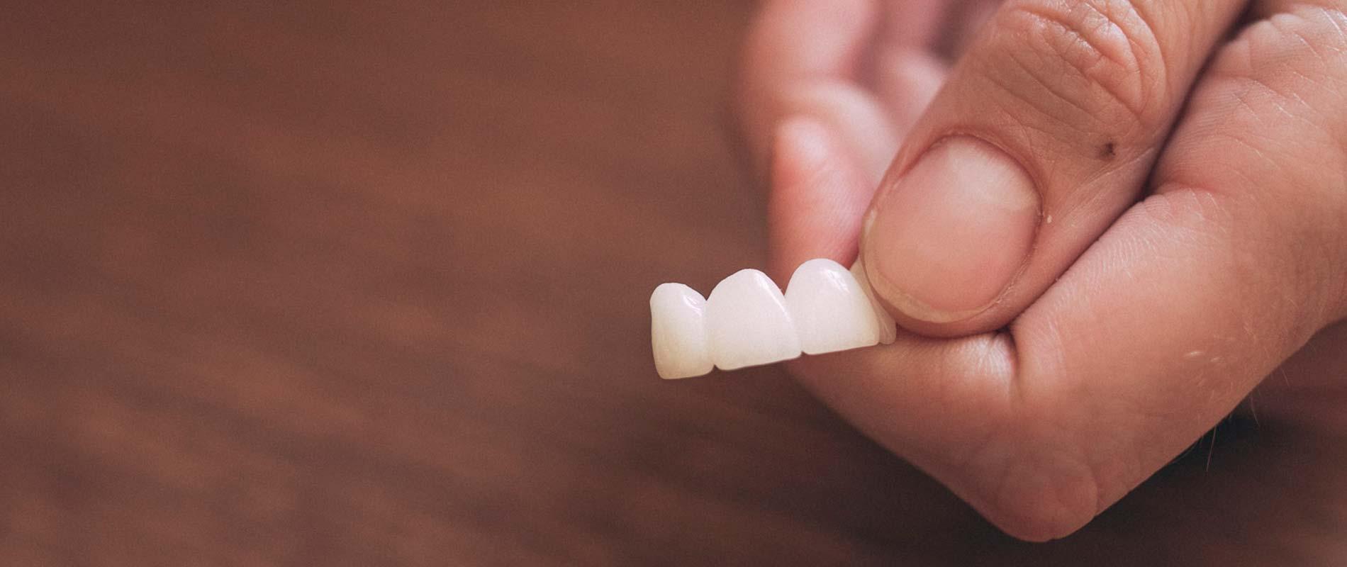 Zahnärztin hält Zahnbrücke in der Hand.