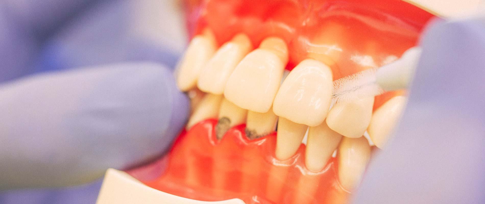 Reinigung eines Zahnmodells mit Hilfe einer Interdentalbürste.